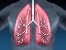 肺气肿的护理