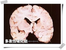 多发性硬化症的主要变异型