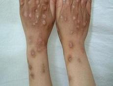 痒疹 妊娠 原因 性 【医師監修】妊娠性痒疹とは?出産すると治る?原因と対策、治療法