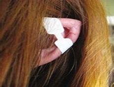 耳畸形矫正手术方式