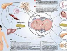 多囊卵巢综合征表现_多囊卵巢综合症概述_病因_分类_临床表现_诊断_鉴别诊断_治疗 ...