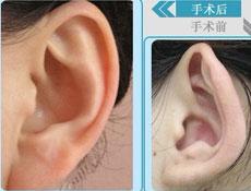 耳畸形矫正手术禁忌症