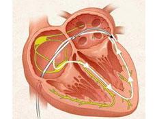 起搏器综合征发病机制