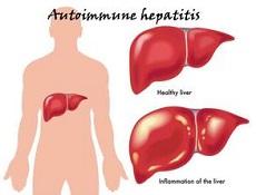 关于肝病孕育