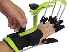 矫形器的应用